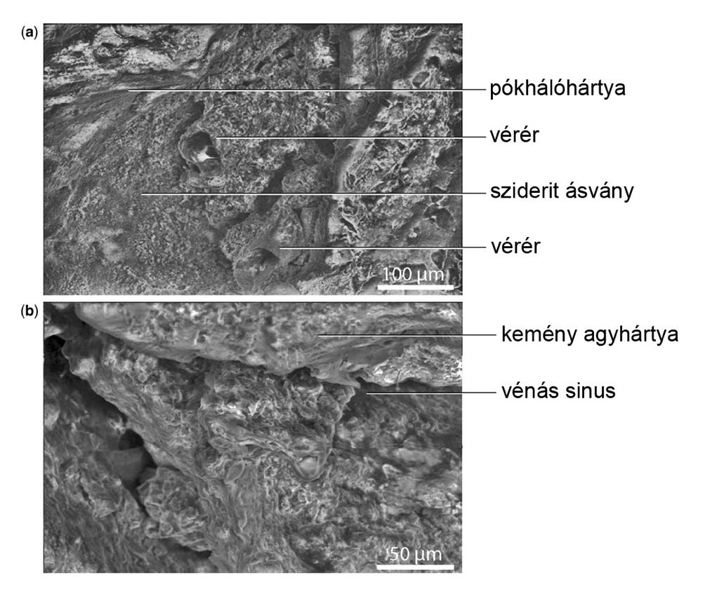 Pásztázó elektronmikroszkópos felvételek a fosszilizálódott dinoszauruszagy felszínéről. Természetesen a feliratok nem a valós anatómiai képleteket, csak azok fosszilizálódott maradványait jelölik.