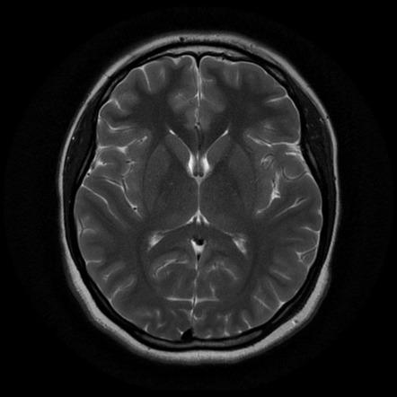 Egy egészséges agyról készült MRI felvétel. forrás: radiopedia.com